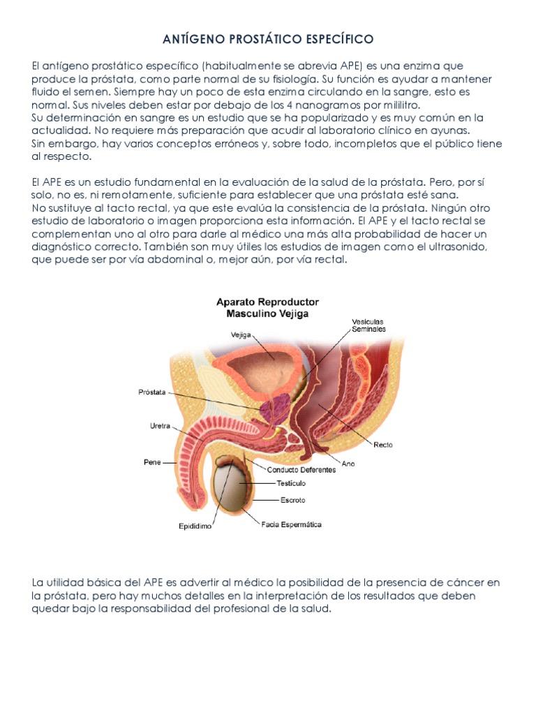 diapositiva de absceso de próstata