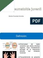 artritis rehumatoide juvenil