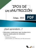 TIPOS DE DESNUTRICI+ôN jalapa