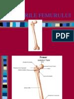 8 Femur - Fracturi