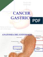Cancer Gastrico Modificado