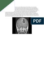 Glioblastoma Multiforme (GBM