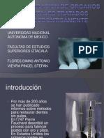 Presentacion Endodoncia Final