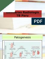 Gambaran Radiologis TB Paru