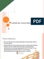 Lesión del plexo braquial