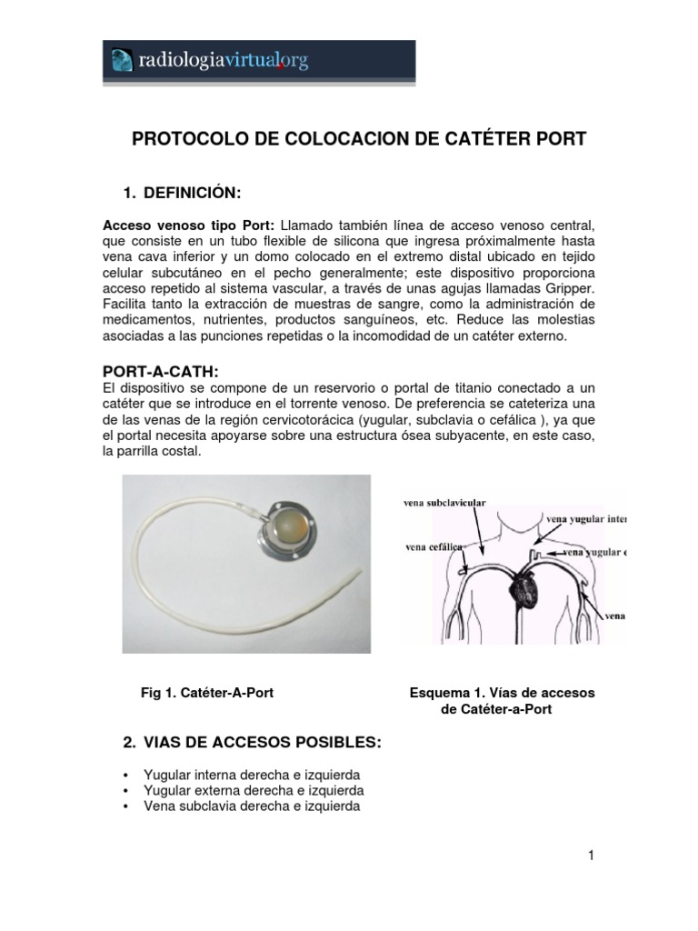 Jmq Cateter Port