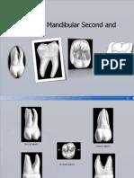 maxillarymolars-100112024419-phpapp01 (2)