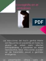 Cervicovaginitis en El Embarazo