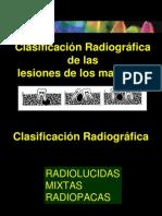 cdocumentsandsettingsmilushkaescritorioclasificacinradiogrficadelaslesionesdelosmaxilares-090507193355-phpapp02