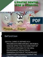DENTAL CARIES.pptx