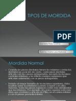diagnosticotiposdemordida-100511232330-phpapp01