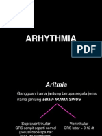 K.34 Aritmia Andika