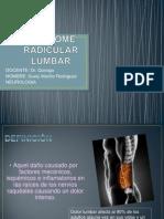 Sindrome Radicular Lumbar
