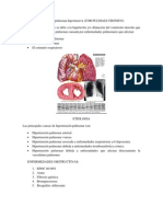 Cardiopatía pulmonar hipertensiva