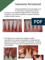 Periodontia II Plano de Tratamento Periodontal (2)