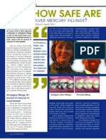 How Safe are Mercury Fillings?
