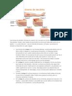 Etapas de las úlceras de decúbito