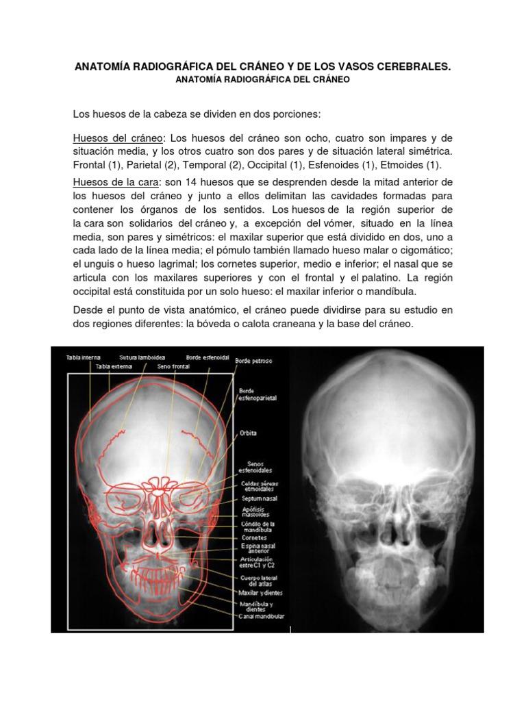 Tema 2_Imagenologia de Craneo y SNC