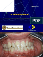 La Infeccion Focal
