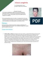 Ictiosis congénita