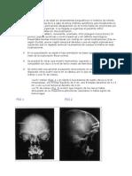 Caso clínico herida clavos