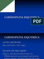 Cardiopatia Isquemica Arritmias Bloqueos