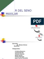 Anatomia Del Seno Maxilar