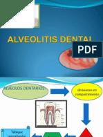 Alveolitis Dental Exposicion
