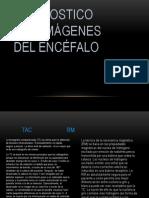 Diagnostico por imágenes del Encéfalo