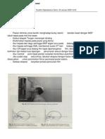 Teknik Radiografi Sinus Paranasal