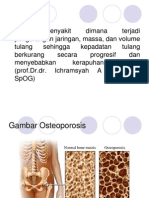 osteoporosi ppt