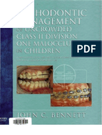 treatment of class II malocclusion