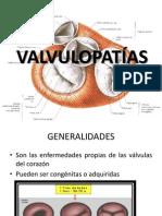 VALVULOPATÍAS