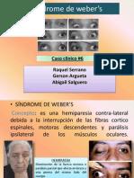 Síndrome de weber_s (1)