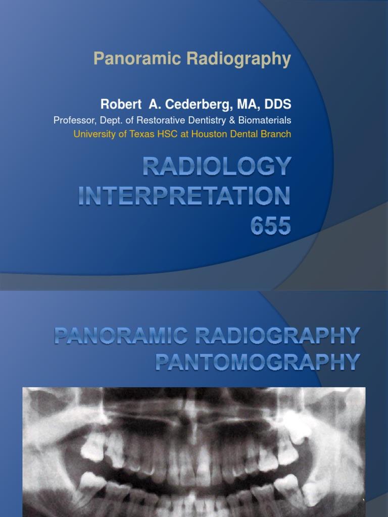 Panoramic Radiography 11 | Radiography | Human Head And Neck