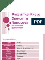 Presentasi+Kasus+Dermatitis+Numularis+Fix