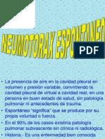 neumotórax espontáneo (1)