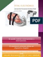 Monitoreo Fetal Listo