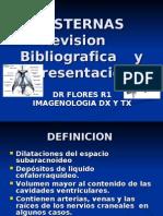 CISTERNAS Revision Bibligrafica y Presentacion