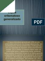 VIII. Lupus eri tematoso generalizado.pptx