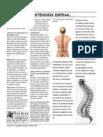 Estenosis Espinal.pdf