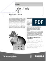 STAR arrhythmia monitoring.pdf