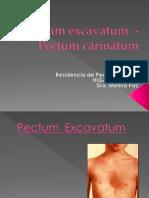 Pectum_carinatum_excavatum[1]