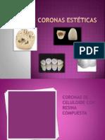 _Coronasssssss