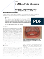 Management of Riga Fede Disease a Case Report