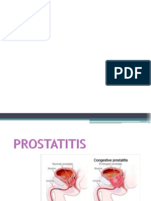 Régi prostatitis kezelési receptek