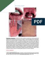 CID 003-12 (Gingivoestomatitis con erupción y fiebre)