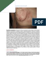 CID 004-12 (Erupción en paciente con cáncer de ovario)