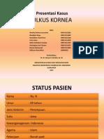 Presentasi Ulkus Kornea Final