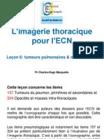 Tumeurs_pulmonaires___mediastinales